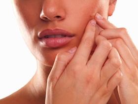 Memencet jerawat dapat menyebabkan infeksi.
