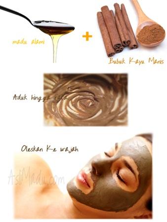 Obat jerawat bubuk kayu manis dan madu