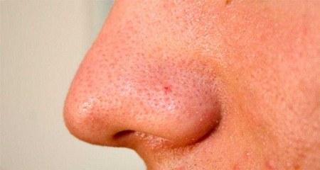 Tingkat stres tinggi sebabkan wajah berjerawat